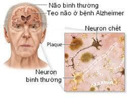 Bệnh Alzeimer bệnh đe dọa tuổi già khó chữa trị